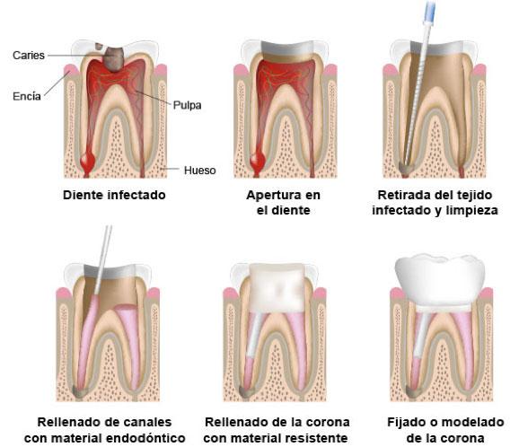 endodoncia3.jpg