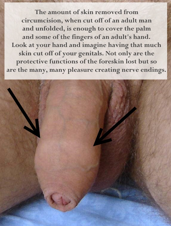 AdultIntactForeskinJPEG.jpg