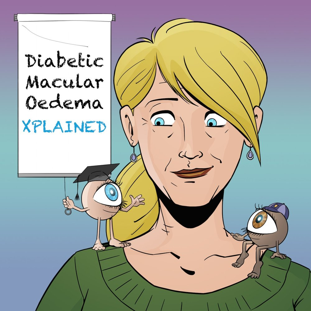 - Diabetic Macular Oedema (DME) XplainedJulia has Type 1 Diabetes and about 2 ½ years ago her eyesight rapidly deteriorated, almost overnight. She was working in ICU as a nurse couldn't read the monitors on the wall.She'd had eye checks before and never had a problem with her sight. This time, her Optometrist referred her to a specialist, who started eye injections straight away for a condition she'd developed called DME. Luckily her nursing background and a few good books helped start her journey, but in Julia's words, download DME Xplained for