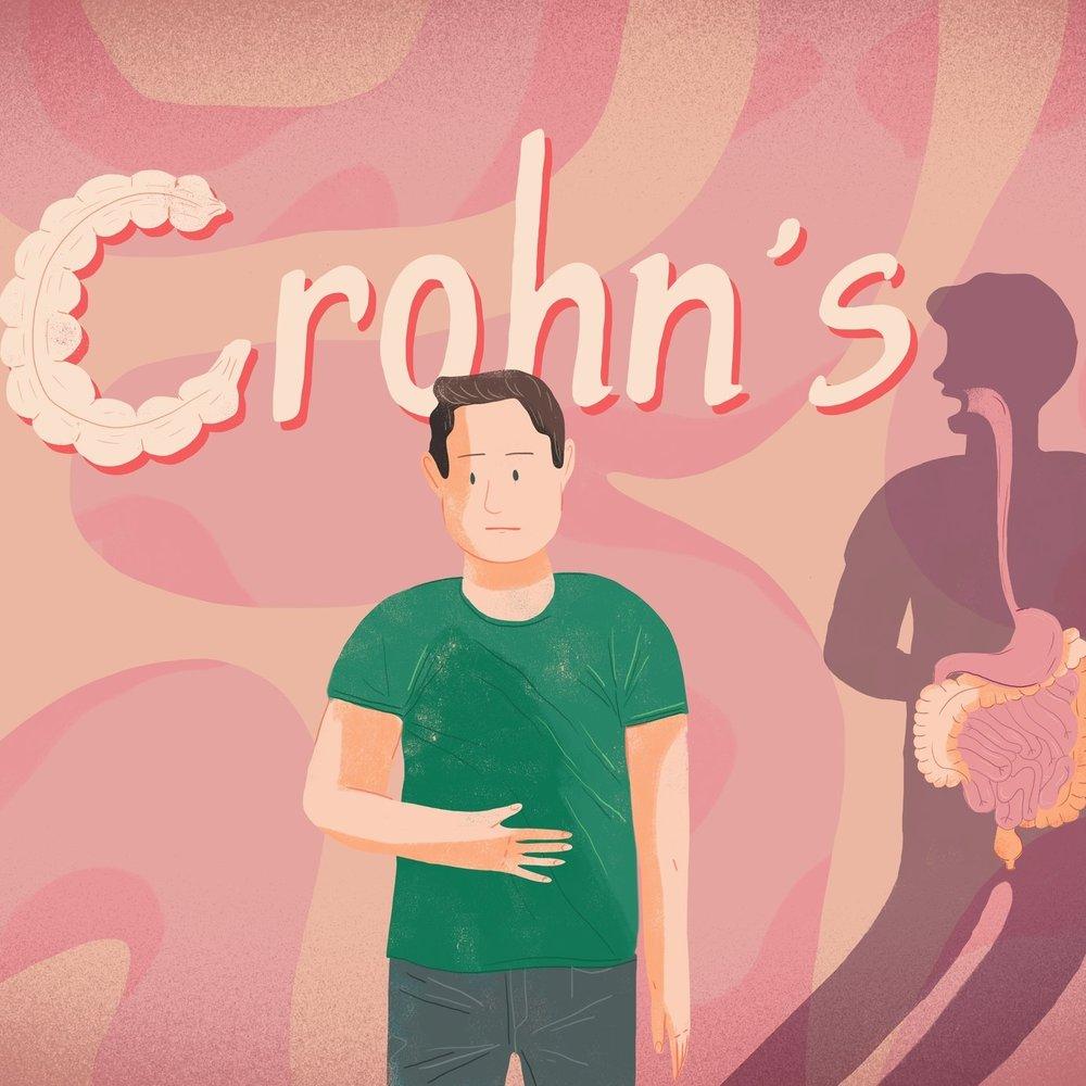 Crohn's Xplained