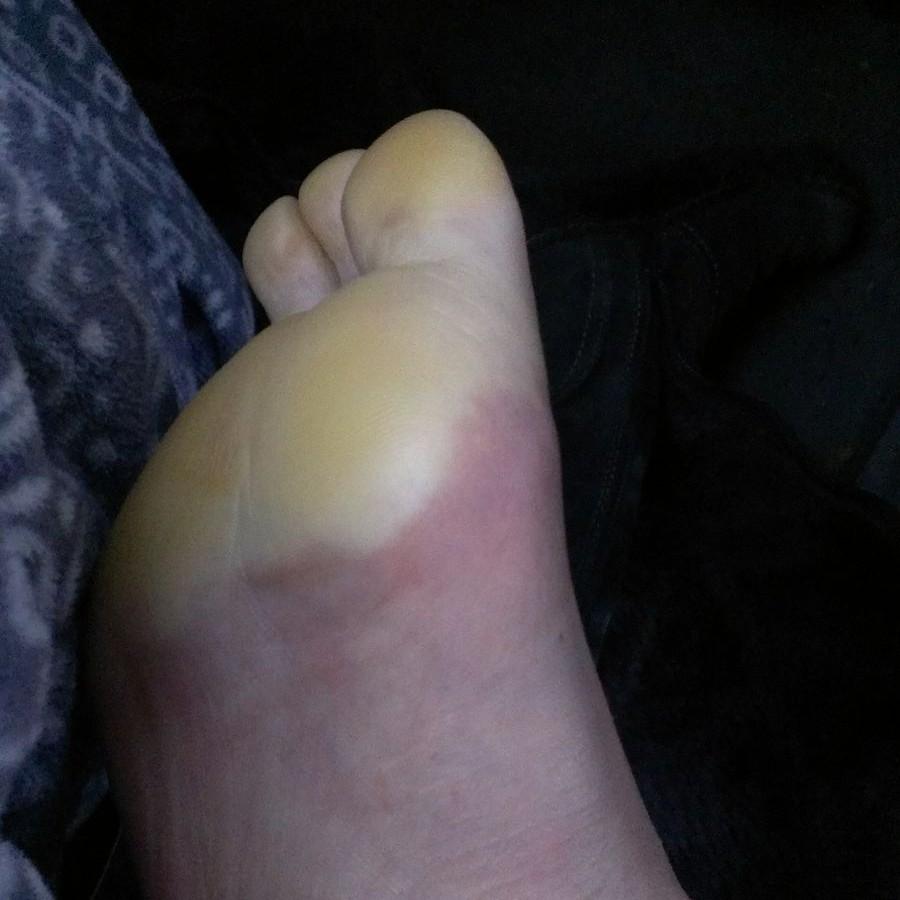 Cold Foot Bad