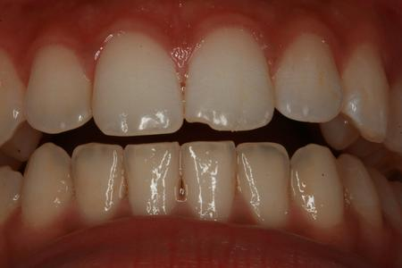 Before cosmetic bonding to repair chipped tooth