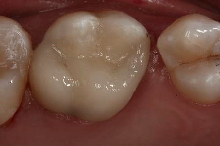 After replacement of amalgam (mercury) filling with composite bonding