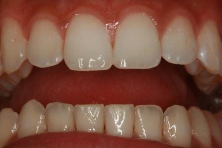 After cosmetic bonding to repair chipped tooth