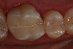 After removal of decay and replacement of large amalgam (mercury) filling