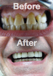 Smile Makeover -                 Real Patient