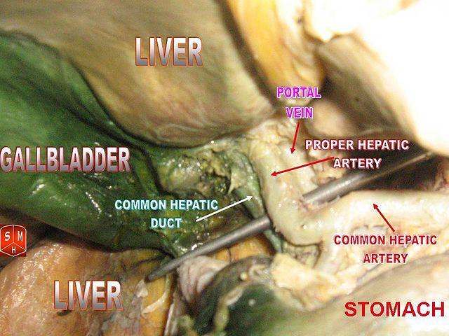 Gallbladder_and_hepatic_artery_2.jpg