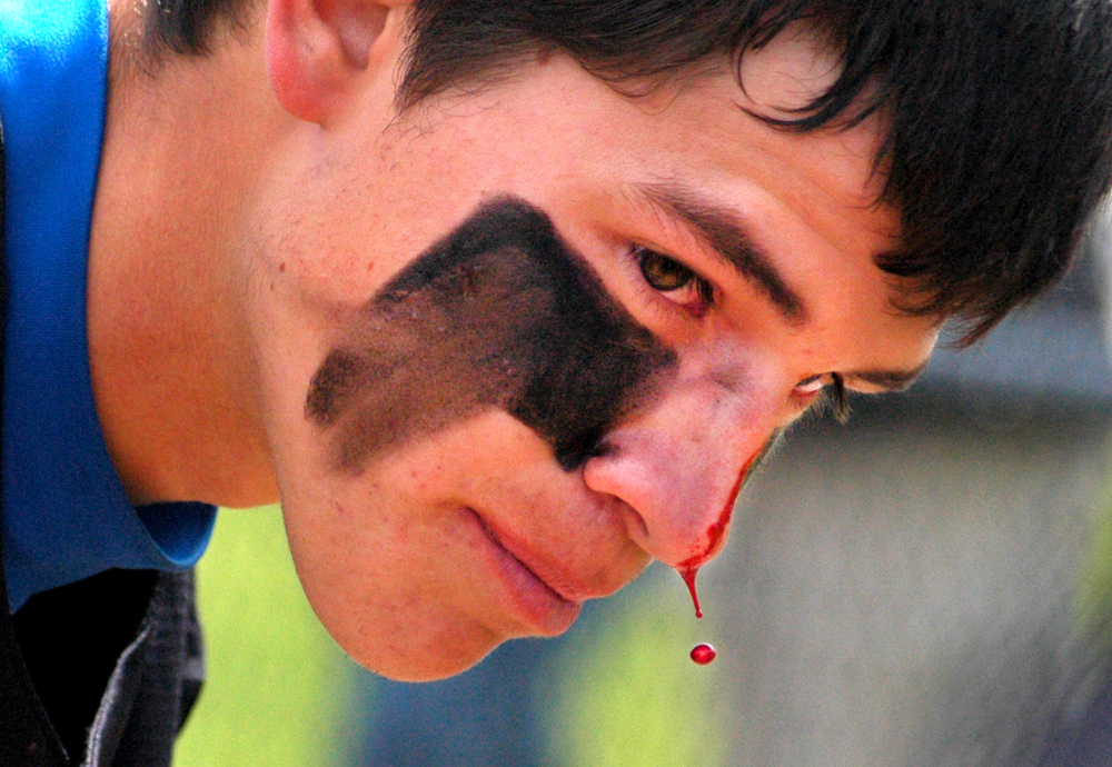 Blood drips from the nose of Wheat Ridge High School Pitcher Nick Swanson after he was hit by another players cleat during a play at first base in Aurora Colorado May 21, 2011. The Wheat Ridge Farmers won the 4A high school playoff game against Air Academy 5-2.
