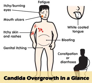 candida-overgrowth-in-a-glance.jpg