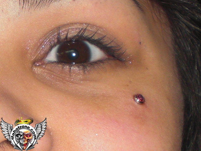 cheek eye microdermal