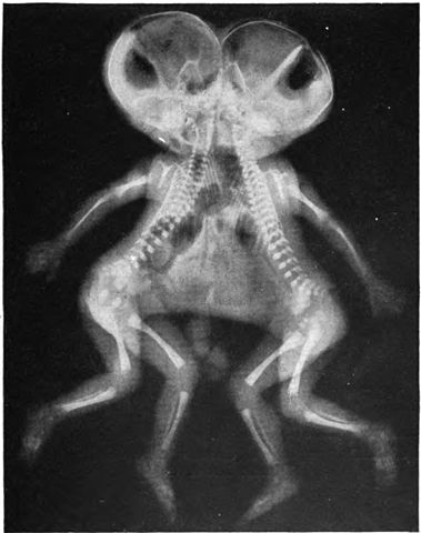 379px-Conjoined_X-ray.jpg