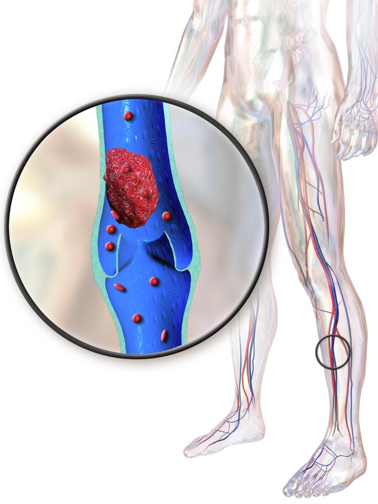 Saphenous Vein Ablation Vein Vascular Center