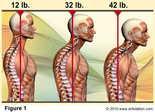 "Every inch that your head falls forward is equivalent to adding 10lbs of weight to your head. In the first figure, the head and neck are neutral, so the weight of the head is 12lbs. However in the 2nd and 3rd figure, the head has fallen 2"" and 3"" forward, which now makes the head seem like 32 and 42lbs. Your body has to expend a lot more energy trying to keep your chin from hitting your chest. This tension would initially be felt through the neck and upper back."