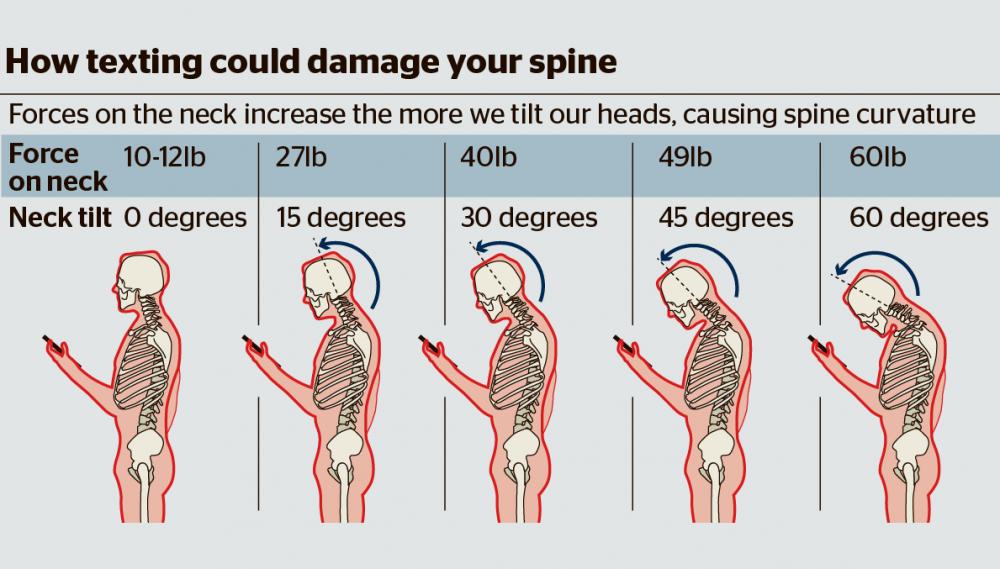 text neck damage