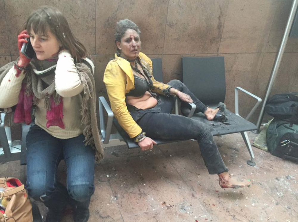 Women injured during the terrorist attack on the airport in Zaventem, Belgium in March 2015 (Ketevan Kardava, Facebook)