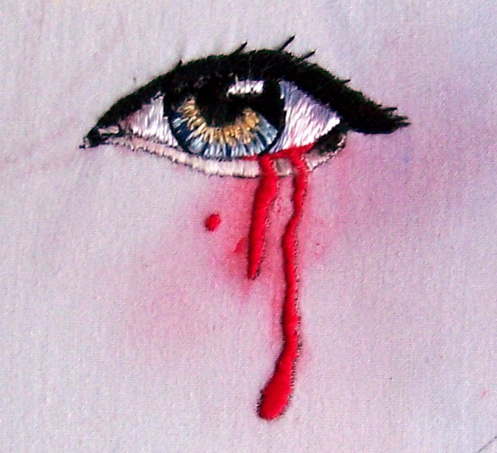 """Bleeding Eye"" by C. Bayraktaroglu"