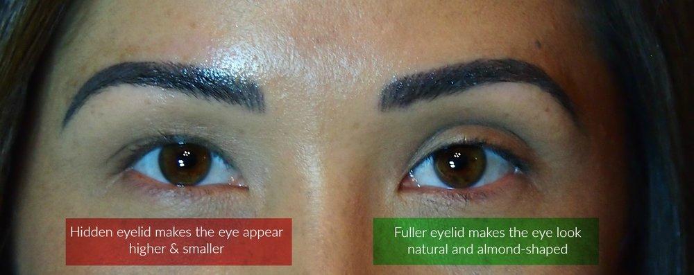 Advanced Technique Making Uneven Eyes Look Symmetrical Dela