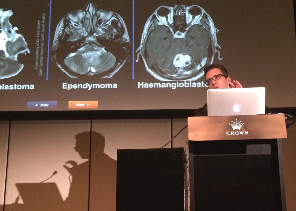 Dr Frank Gaillard of Royal Melbourne Hospital delivering the first Radiopaedia session of the meeting, on brain tumours