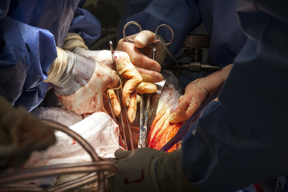 Dr. Quynh Feikes performs a surgery to fix an abdominal aneurysm at University Medical Center on Tuesday, May 23, 2017. Dr. Feikes is the only female cardiac surgeon in Nevada. Patrick Connolly Las Vegas Review-Journal @PConnPie