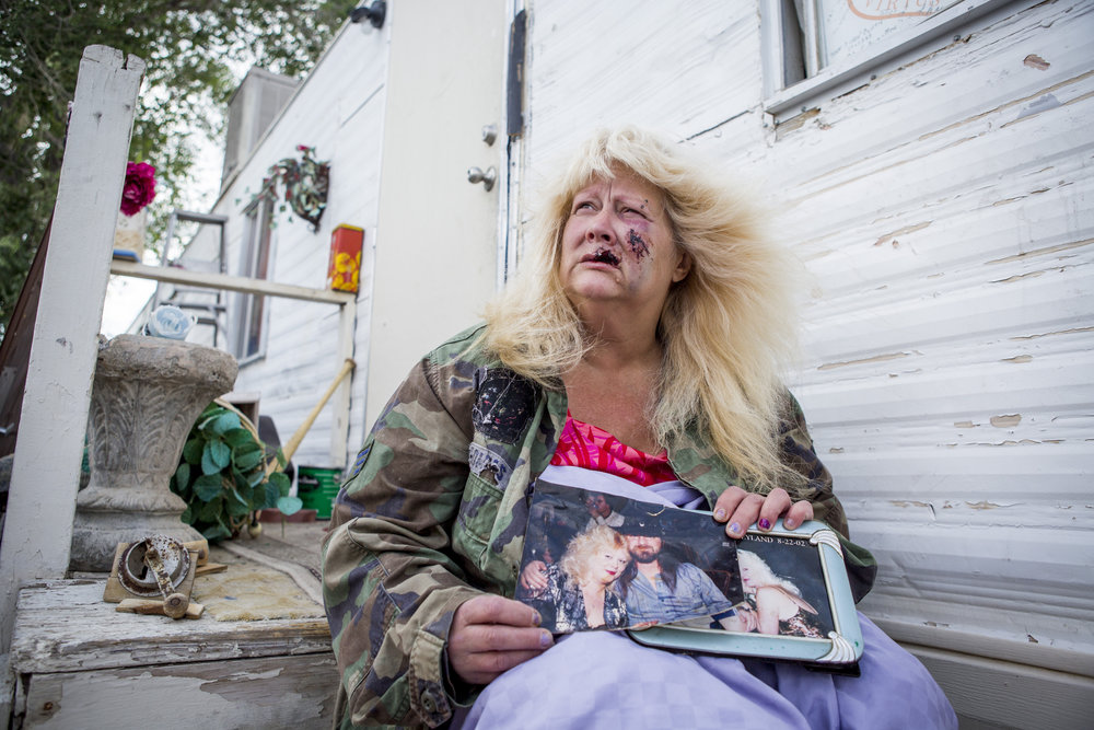 "Joan Hobbs, 53, holds photos of herself outside of her home before she was bitten by a dog in northeast Las Vegas Tuesday, May 9, 2017. ""I didn't used to be ugly,"" she said. ""Now I am, and it's not my fault."""