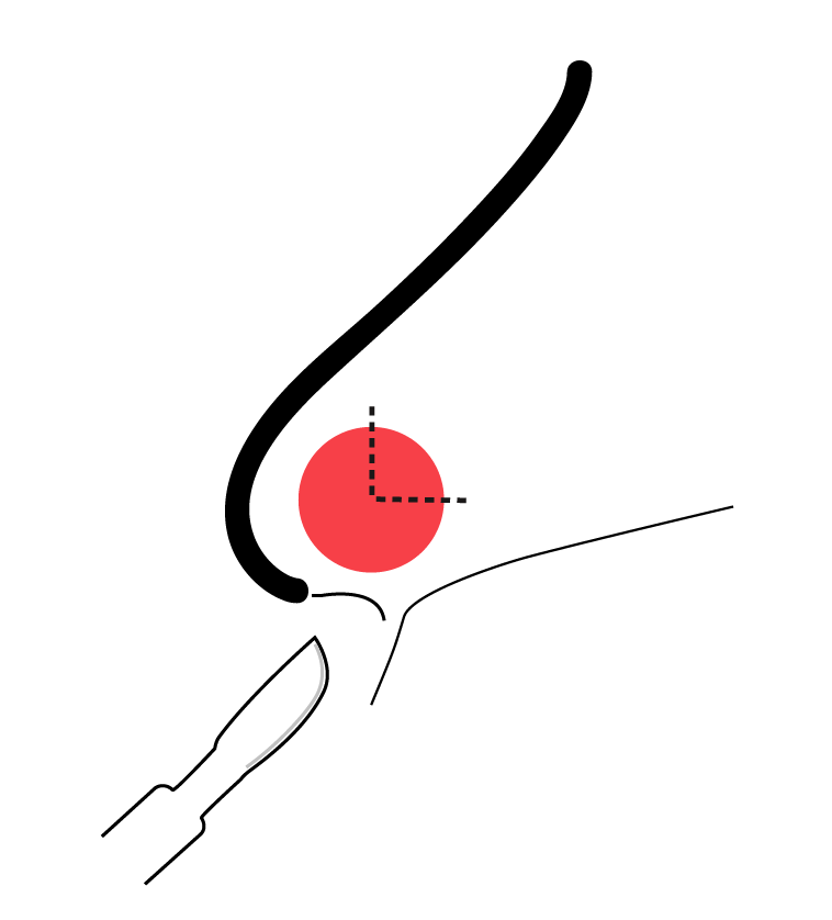 Technique To Drain Septal Hematoma