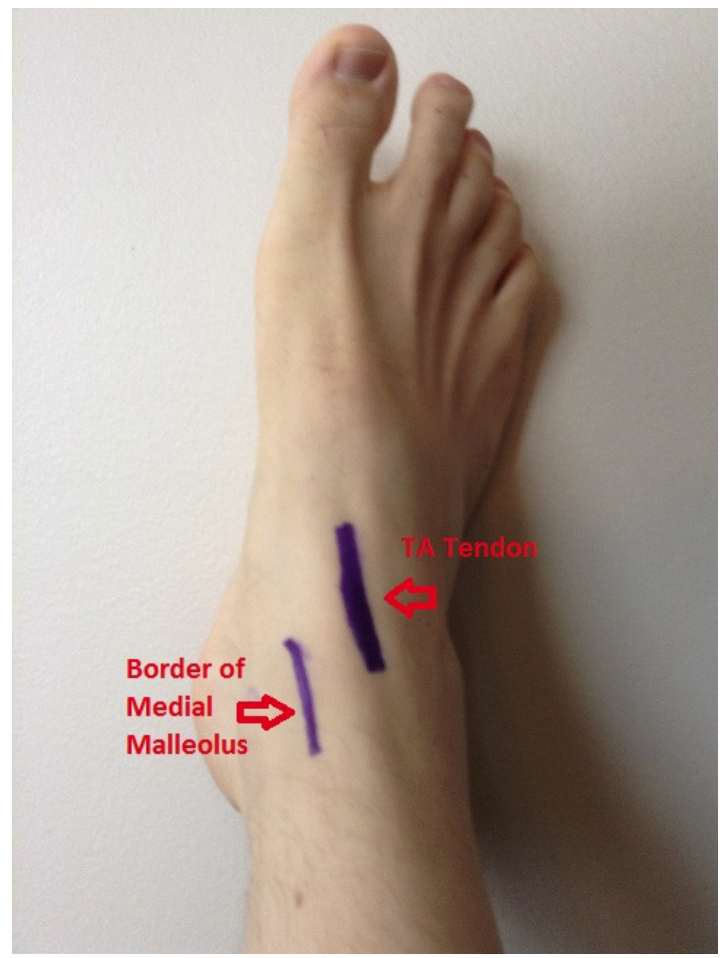 Owning The Ankle Arthrocentesis Nuem Blog