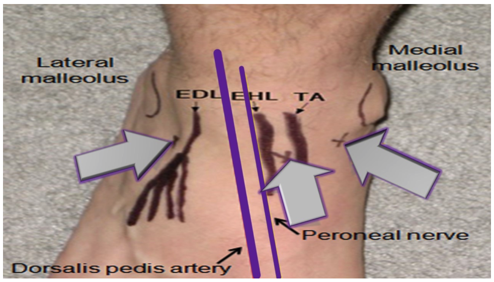 Image 2 : Approaches to the ankle arthrocentesis. (Image modified from: http://img.medscape.com/pi/features/slideshow-slide/arthro-practice/fig9.jpg)