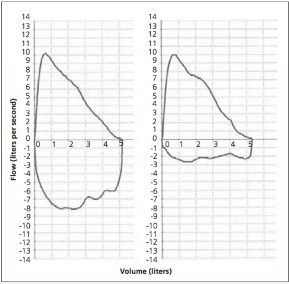 Figure 2. Flow-volume loop. (Left) Normal expiratory and inspiratory loop. (Right) Normal expiratory loop with flattening of the inspiratory loop, consistent with vocal cord dysfunction. Borrowed from Deckert and Deckert (2010) [6].