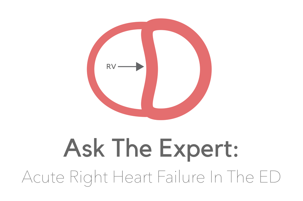 Ask The Expert Acute Right Ventricular Failure In The Ed Nuem Blog