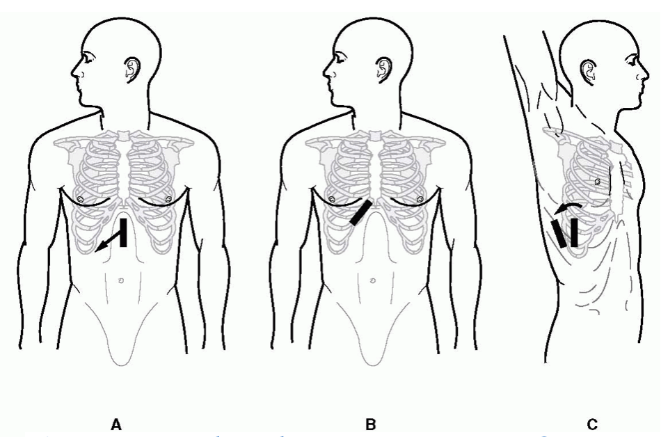 Figure 1: Probe placement.  Image from Cosby, Karen S.; Kendall, John L., Practical Guide to Emergency Ultrasound, 1st Edition, Copyright (c) 2006 Lippincott Williams & Wilkins.