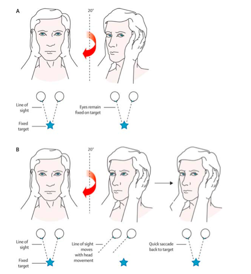 How to correctly perform the head impulse test with demonstrations of a negative (A) and positive (B) finding [1].