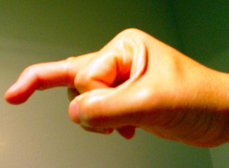 Img 3. Mallet finger