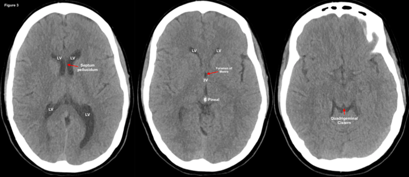 Emergency Guide to Neuroimaging: Part 1 — NUEM Blog