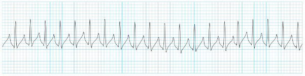 https://lifeinthefastlane.com/ecg-library/svt/