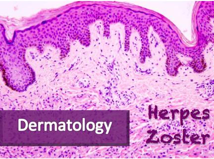 Herpes Zoster — NUEM Blog