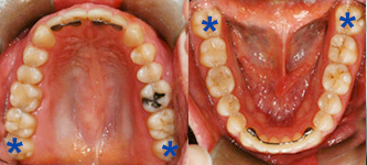 Healthy wisdom teeth (*) positioned aesthetically and functionally.