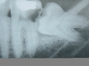 Wisdom tooth causing damage to the neighboring tooth.