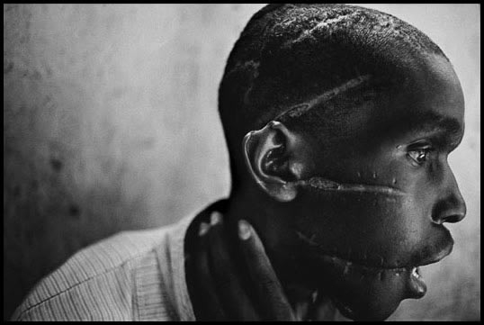 Rwanda , 1994. Survivor of Hutu death camp.  Photograph by James Natchwey.