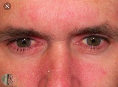 dermatitis.jpg