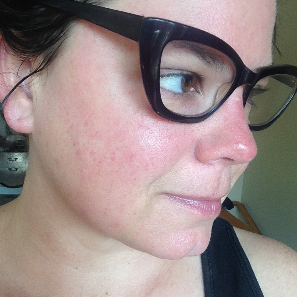 While i do love this foundation i can't wear it often because I am so allergic to it. notice the contact dermatitis