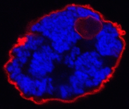 Mechanical forces produced by condensin ii promotes DNA (blue) tethers at the nuclear envelope to pull Lamin (red) proteins and membrane to form intra-nuclear vesicular bodies. image by lita bozler.