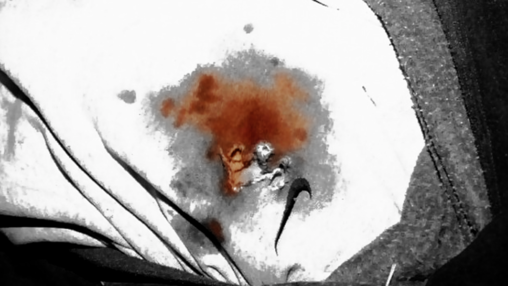 TrayvonMartin_evidence_bullet hole_ bloodstain.png