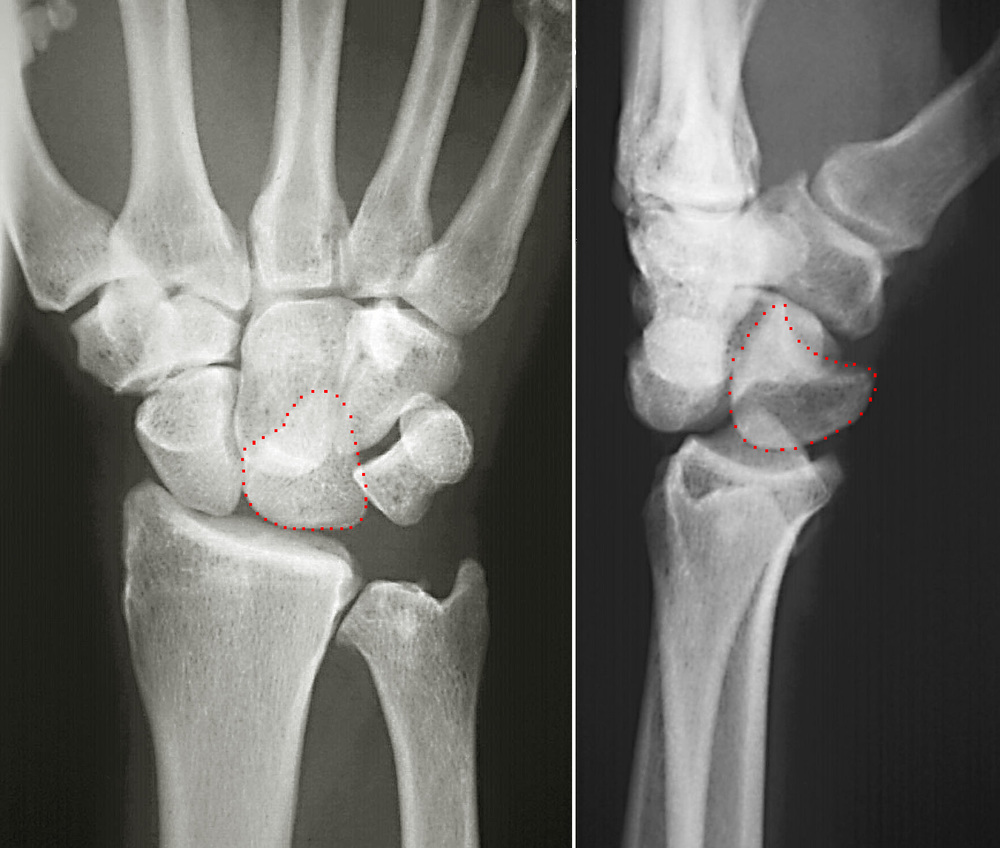 pain hand joints dolor articular mano