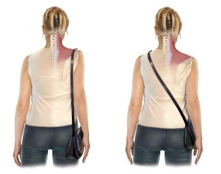 bad posture handbag distortion mala postura columna