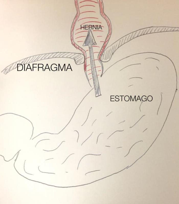 hernia hiatal salud diafragma