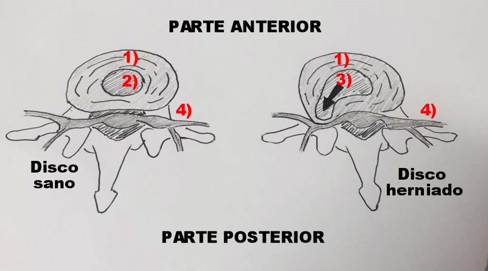 1) Anillo Fibroso  2) Nucleo pulposo sano  3) Nucleo pulposo herniado  4)Raiz nerviosa