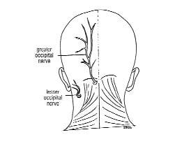 cervical neuralgia headache dolor de cabeza migraña cuello