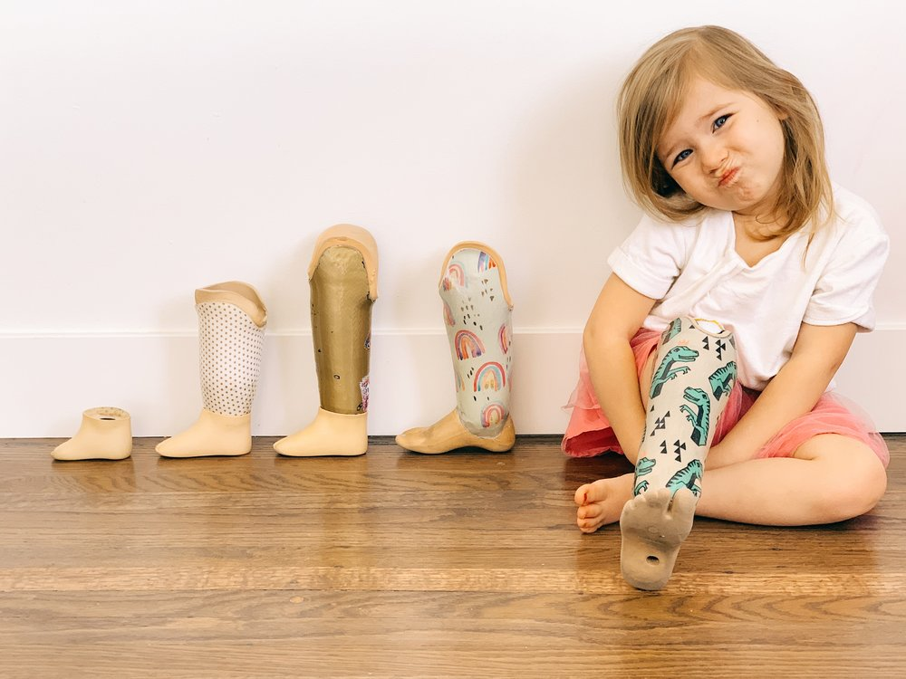 Little Girl With prosthetic leg | A Mom's journey dealing with her daughters disability