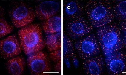 Advancing the ability to image single RNA molecules at the cellular level