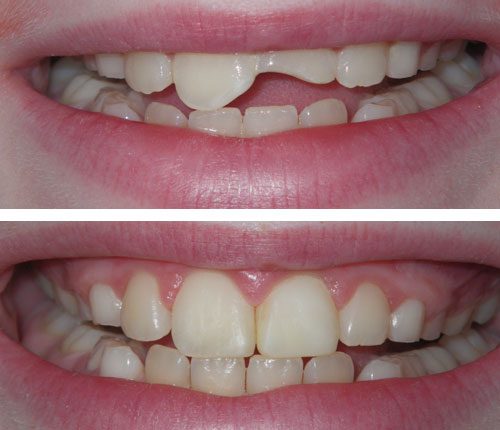 Direct Resin Crowns on a Pediatric Patient